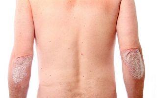 Risankizumab Treats Psoriasis More Effectively Than Other Antibody Drug